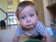 Blaue Augen, rote Backen … Leander und die Zähne
